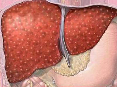 Симптомы и признаки цирроза печени